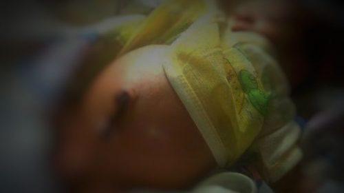 Junari, Bayi Penderita Tanpa Lubang Anus dari Mateng