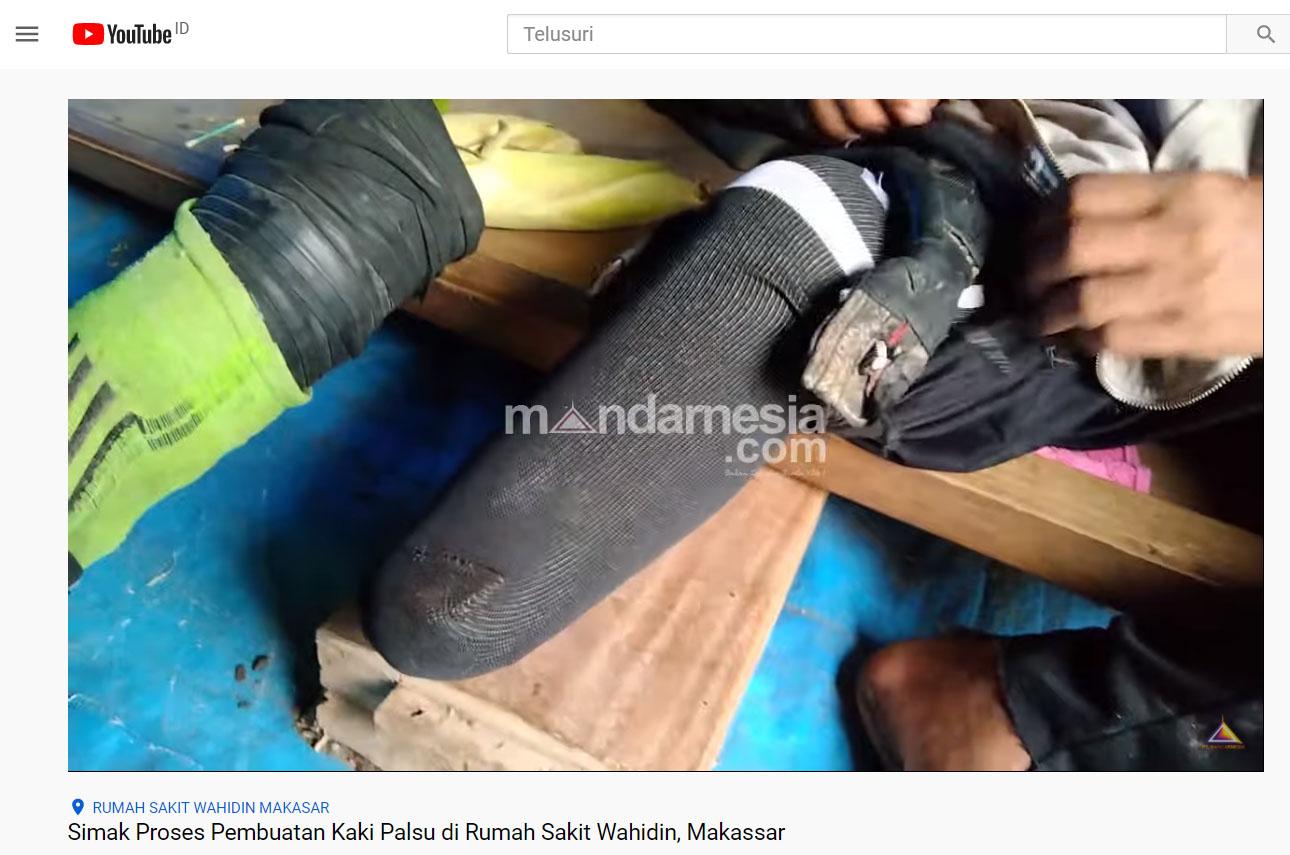 Simak Proses Pembuatan Kaki Palsu di Rumah Sakit Wahidin, Makassar
